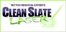 Clean Slate Tattoo Removal